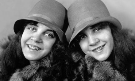 The Hilton Sisters Had A Strange Deformity That Resulted In Both Tragedy And Success