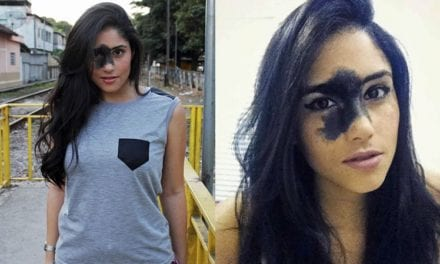 Brazilian Model Refuses To Feel Discouraged About Her Facial Birthmark