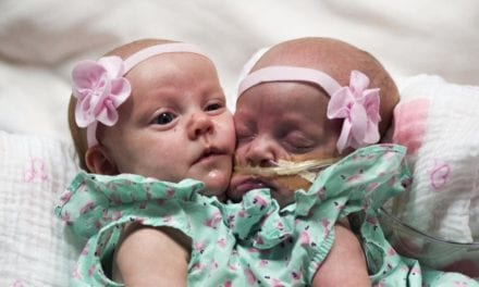 1-Year-Old Twin Sisters Joined At The Chest Get Separated After Massive Surgery