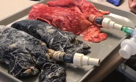 Nurse Shares a Video Showing The Difference Between Healthy Lungs And Smoker's Lungs And The Result Is Terrifying