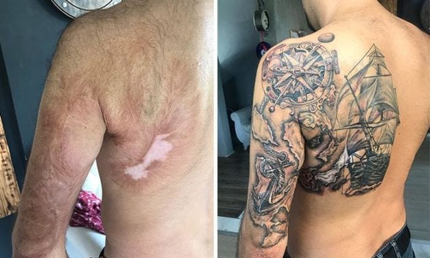 Artist Shows How To Embrace Scars With An Art And Felicity